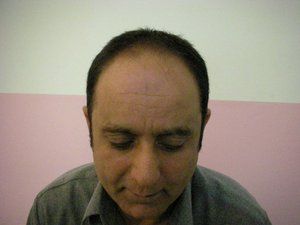 Pakistan hair transplantation