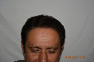 Hair transplantation in Pakistan