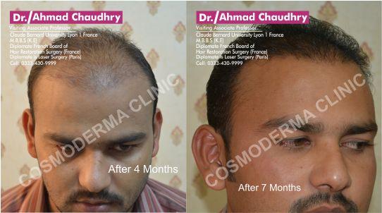 Hair transplantation Pakistan