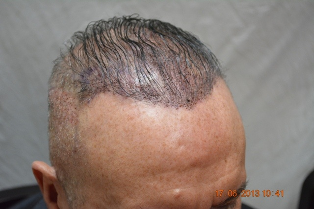 Reviews of hair transplant in Pakistan