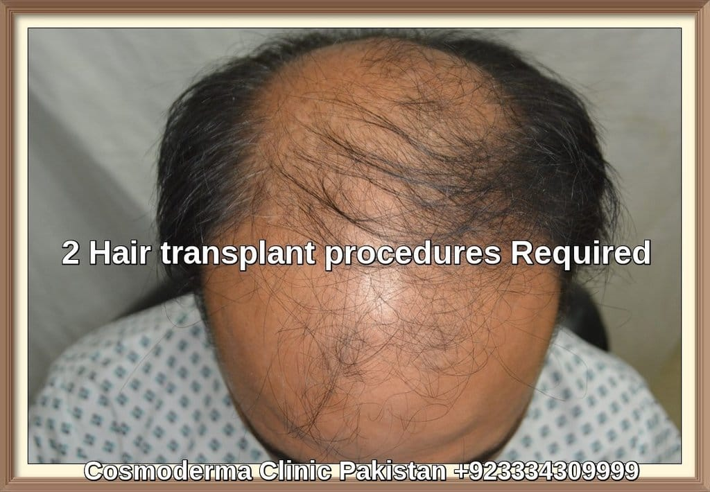 Male pattern baldness treatment Lahore