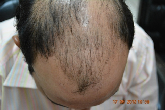 Cost of hair transplant in Pakistan