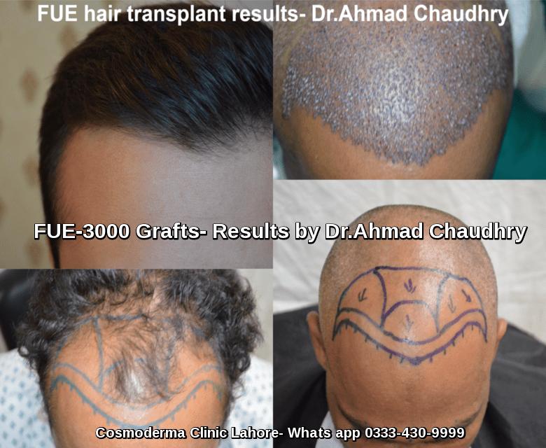 fue-hair-transplant-brussels-belgium
