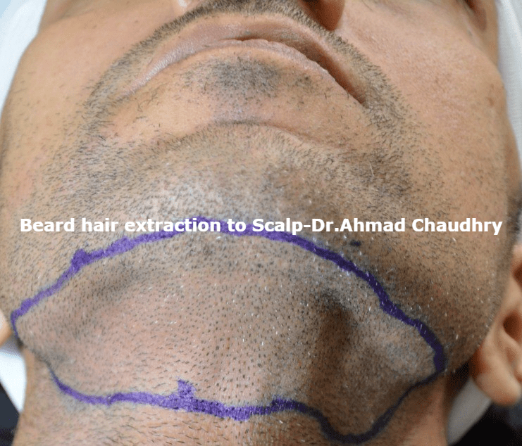 beard-hair-transplant-clinic-lahore