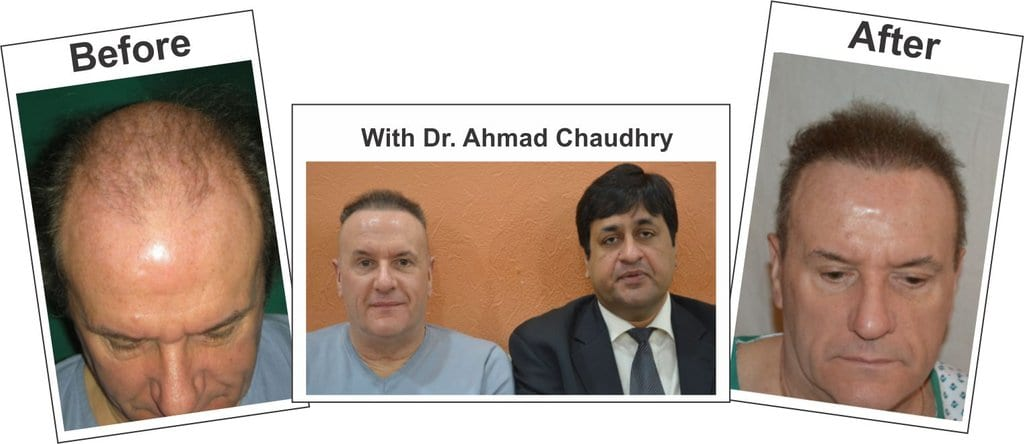 Fue hair transplant before and after result Lahore
