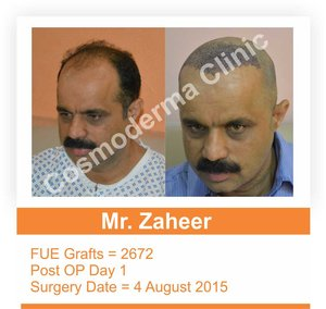 Fue hair transplant recovery time