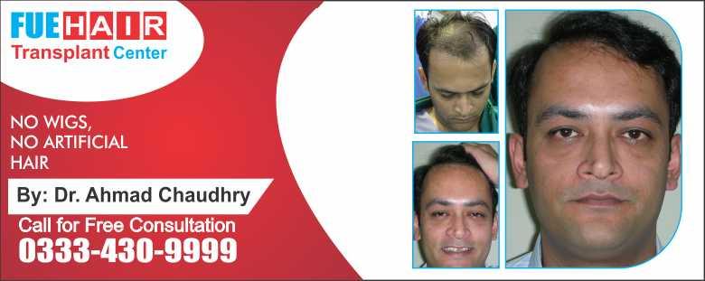 Fue hair transplant result Pakistan