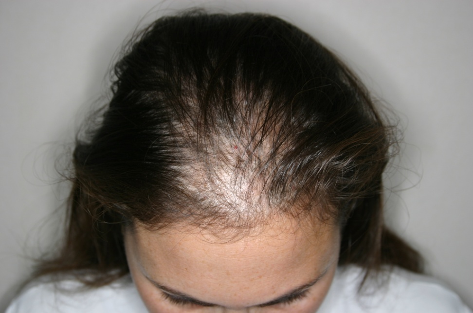 hair thinning female patient