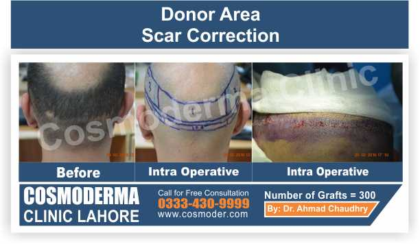 Hair Transplant donor scar repair