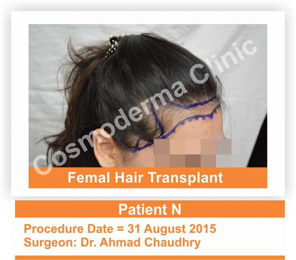 Female hair thinning treatment Lahore