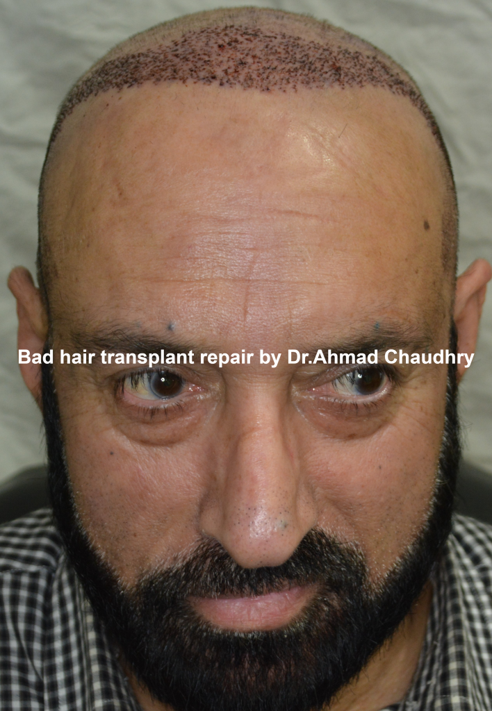 Bad hair transplant repair Lahore Pakistan
