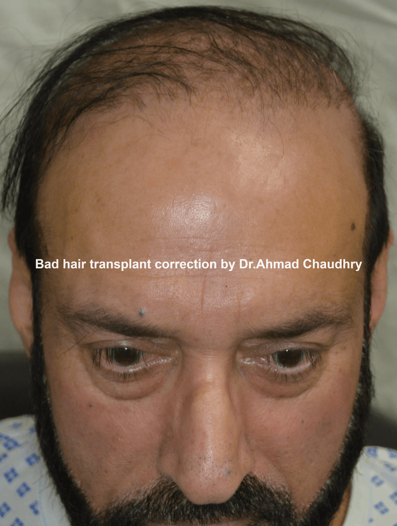 bad hair transplant correction