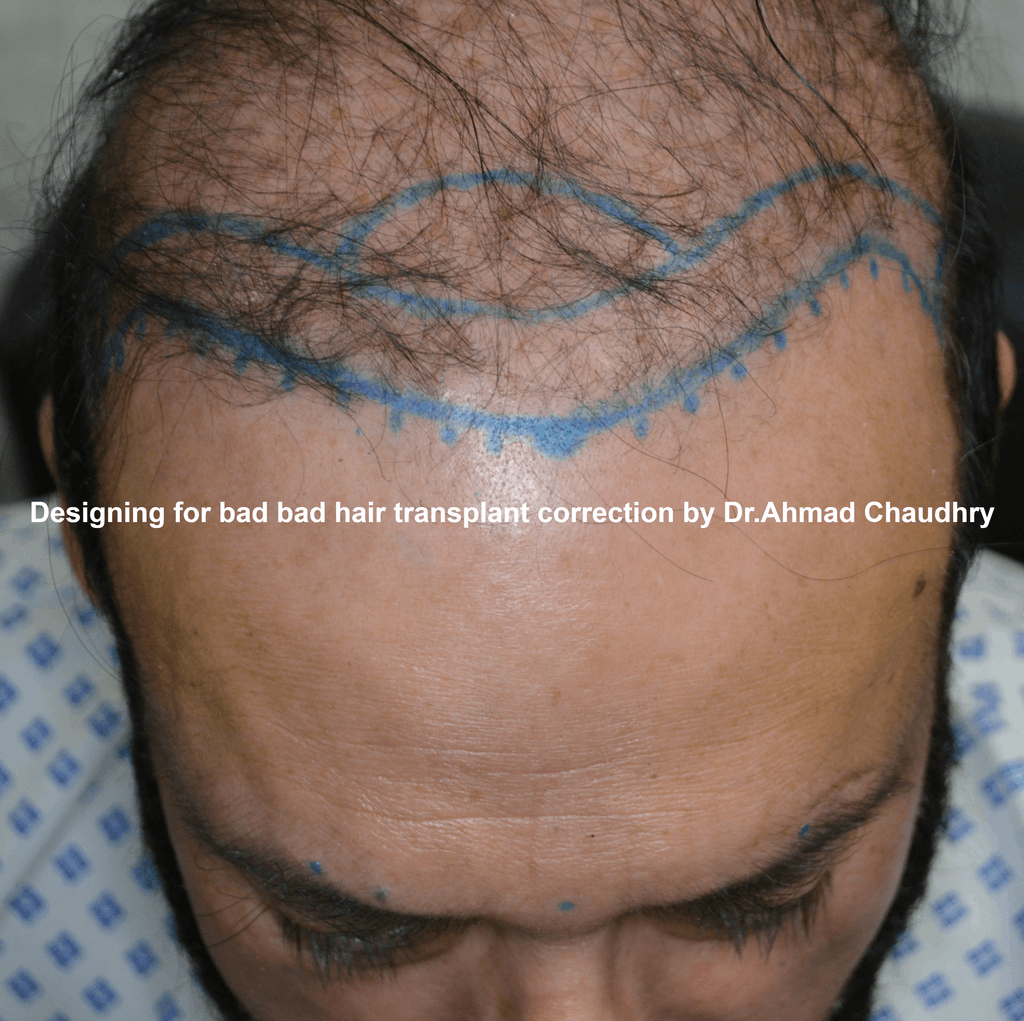 bad hair transplant repair designing