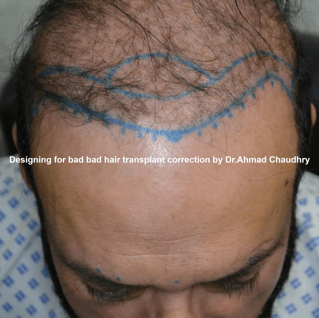 bad hair transplant repair designing