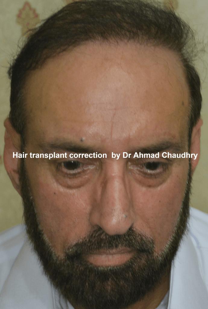 hair transplant correction results Lahore Pakistan