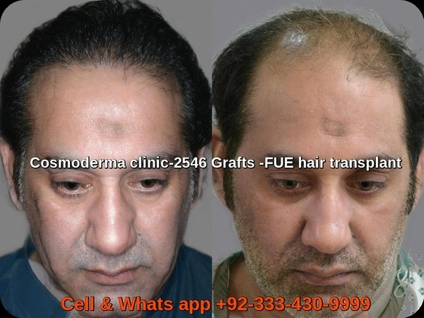 Fue 2500 grafts results one year later  at hair restoration clinic Lahore