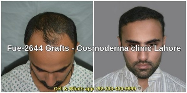 Fue 2644 grafts results six months later in hair transplant clinic Lahore