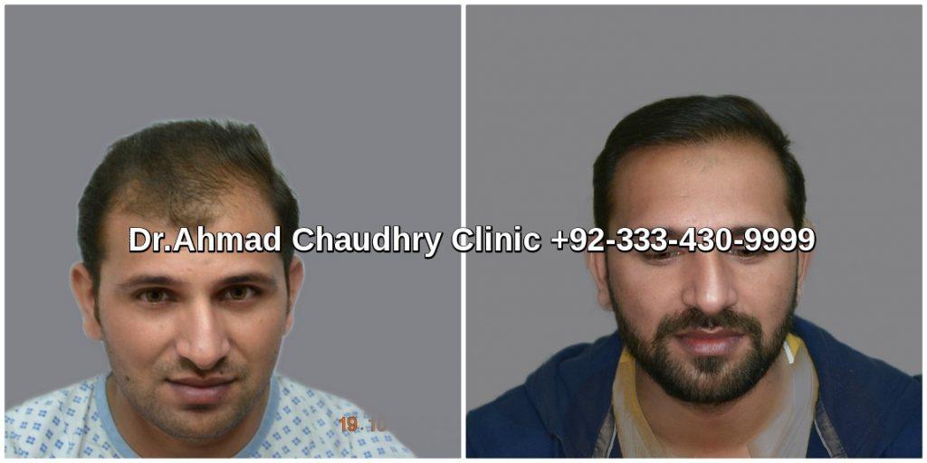 3000 grafts hair transplant cost in Pakistan