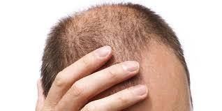 Androgenetic alopecia treatment in Lahore Pakistan