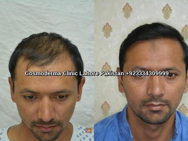 2800 Fue grafts before and after results in Lahore