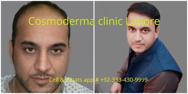 2900 grafts follicular unit extraction results one year later Lahore Pakistan